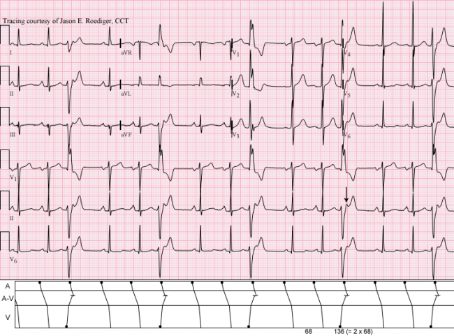 What is an Electrocardiogram ECG EKG  eMedicineHealth