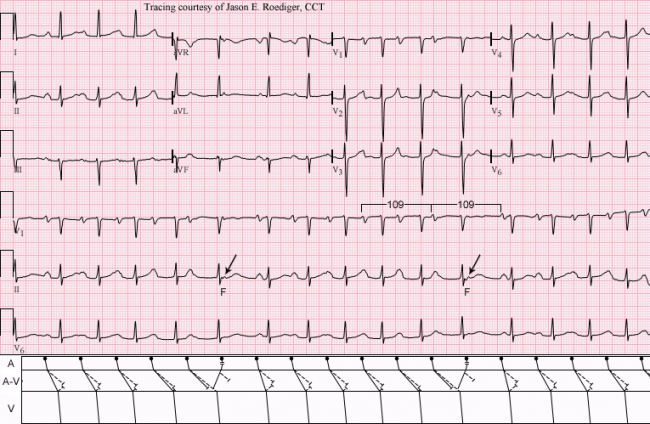 Electrocardiography  Wikipedia