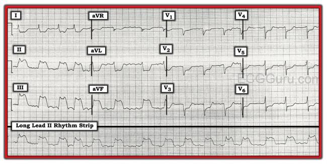 Atrial fibrillation | ECG Guru - Instructor Resources