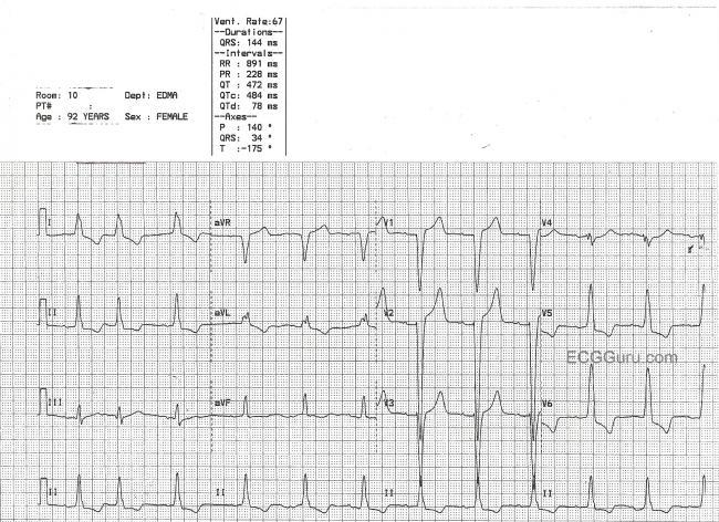 Left Ventricular Hypertrophy ECG Guru Instructor Resources