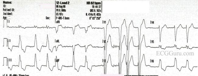 09 as well 12 Lead Ecg Placement Color XSLcuyHXYDBGUQHQNuRHg1MDKALGVvPnEpvzNykRWNo as well Adl also Left Bundle Branch Block 0 besides Search. on pacemaker patient teaching