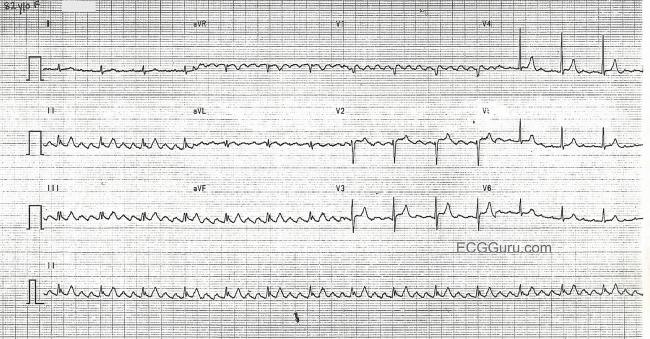 Image Result For Sawtooth Pattern Ecg