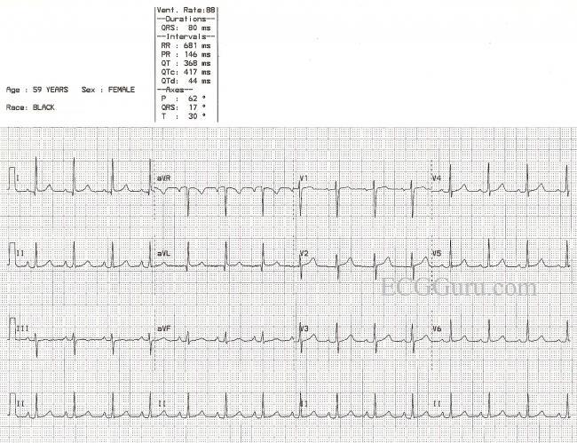 graphic regarding Ekg Practice Strips Printable called Natural sinus rhythm ECG Expert - Teacher Supplies