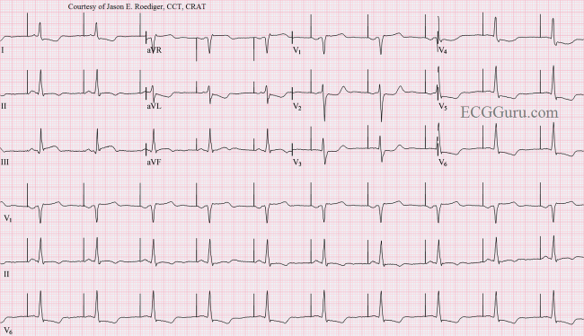 8475120 likewise Free Heart Diagram Coloring Page Printable in addition Electrical Testing Of Pacemaker as well Atrial Pacing as well The Basics Of Paced Rhythms Part 1. on pacemaker basics
