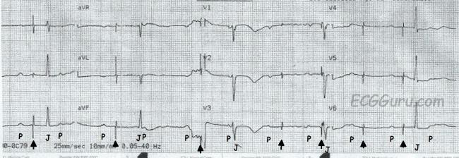 ECG Basics: Pacemaker Failure to Capture | ECG Guru ...