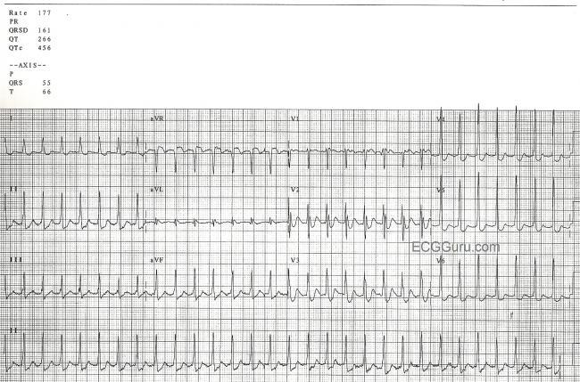 Supraventricular tachycardia ecg strip