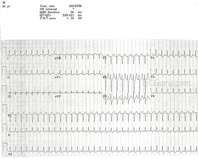 Paroxysmal Supraventricular Tachycardia Ecg Guru Instructor Resources
