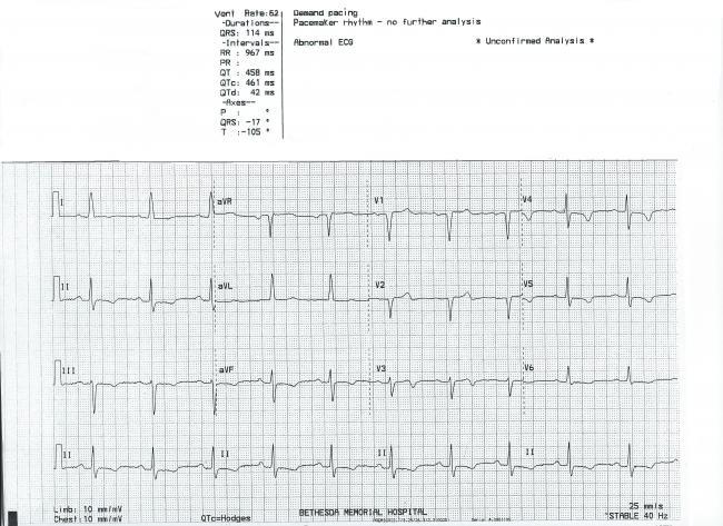 ST elevation | ECG Guru - Instructor Resources