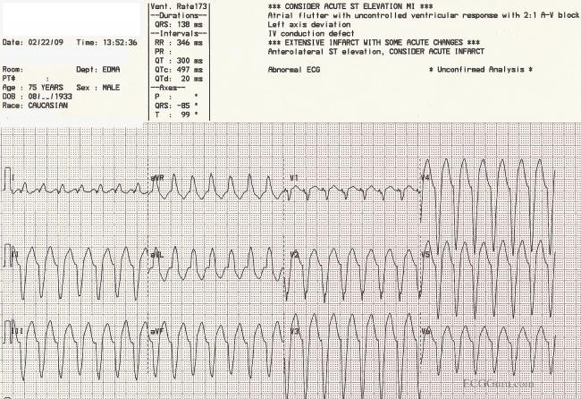 Ventricular Tachycardia Ecg Guru Instructor Resources