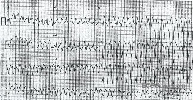 Wide-complex Tachycardia: Ventricular Tachycardia